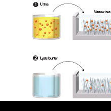 Extracting Exosomes to Detect Signs of Cancer in Urine