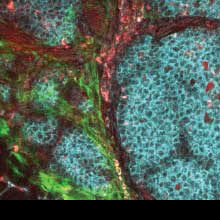 Boosting Immunotherapy Treatments in Mouse Colon Cancer