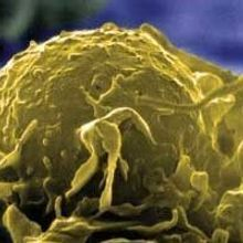 Macrophages Play a Double Role in Cancer