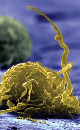 Macrophages Play a Double Role in Cancer | The Scientist
