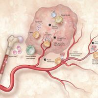 Infographic: Tumor-Associated Macrophages and Cancer
