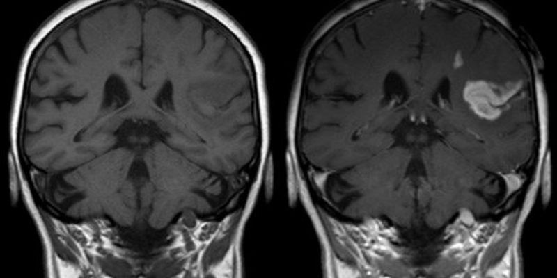 New Genetic Stroke-Risk Factors Identified