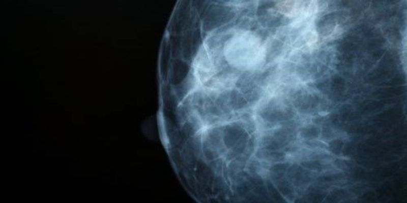 First Direct-to-Consumer BRCA Test Authorized by FDA