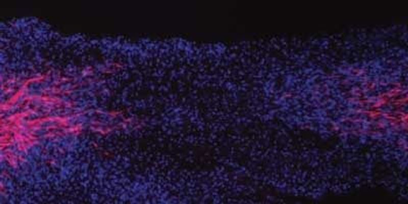Support Cells Gain Stem Cell-Like Properties After Nerve Injury