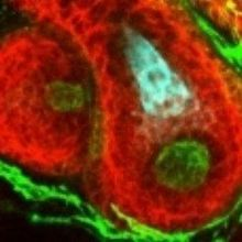 Image of the Day: Hair Follicles