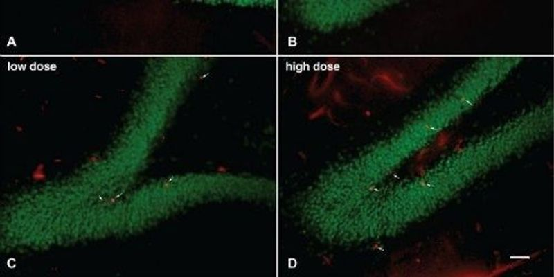 Experimental Drug Relieves Blast-Related PTSD in a Rat Model of Traumatic Brain Injury