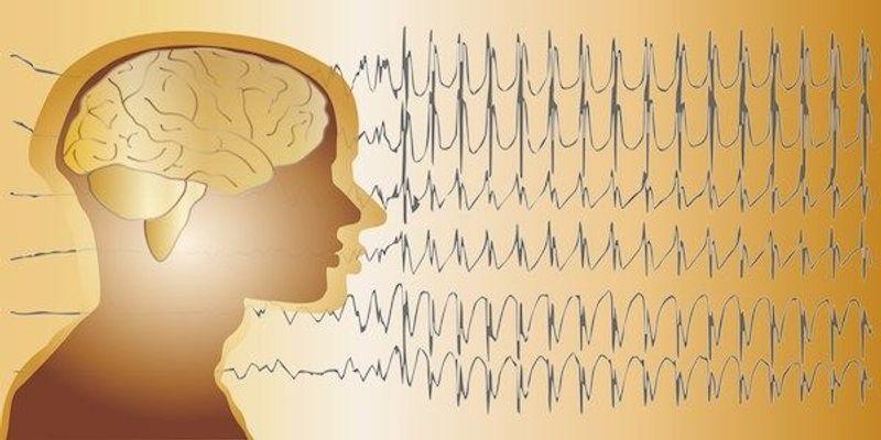 Long-Term Brain Rhythms Offer Possibility of Predicting Seizures