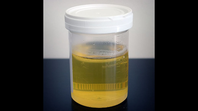 types of urine tests