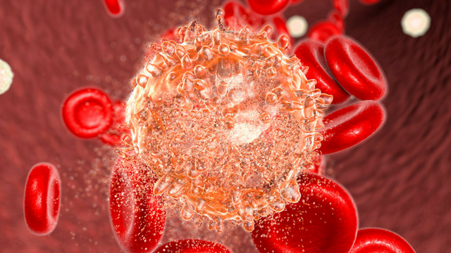 New CAR T-Cell Therapy Shows Promise in Trial for Leukemia | The