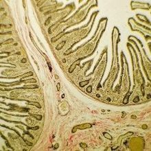 Catalog of the Small Intestine Reveals New Cell Subtypes