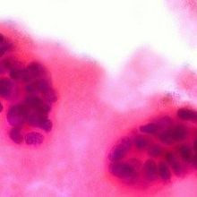 Genetic Risk Factors for Breast Cancer Identified