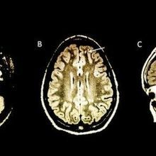 Image of the Day: Telling Scans