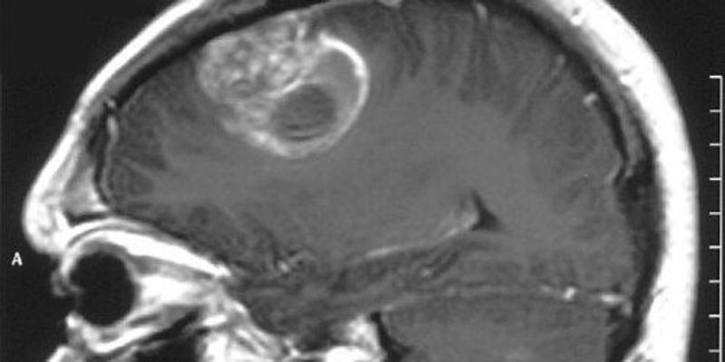 Study Raises Questions About Patient-Derived Xenografts