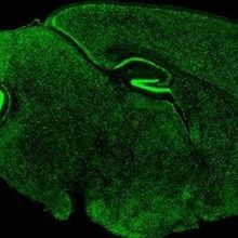 Image of the Day: Fragile Brain