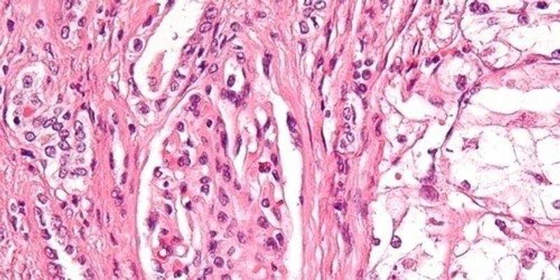 How Kidney Cancer Evolves