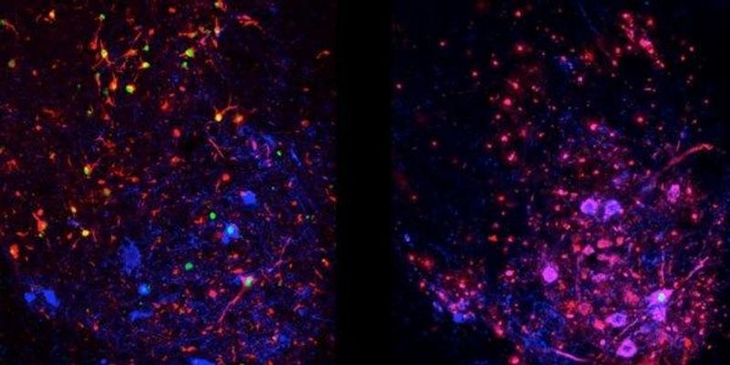 Image of the Day: When Cells Stop Cleaning