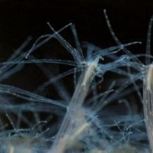 Sea Anemones Illuminate the Evolution of Embryo Development