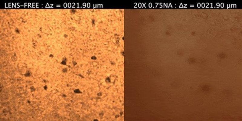 "Microscopy Tool Can ""See"" Through Dense Tissue: Study"