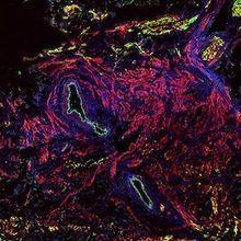 Heart's Backup Pacemaker Mechanisms Identified