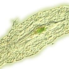Genomic Analysis Leaves Tardigrade Phylogeny Unclear