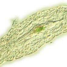Genomic Analysis Leaves Tardigrade Phylogeny Unclear