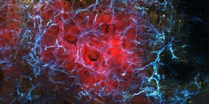 Stem Cells Seek Out Tumors Based on Stiffness