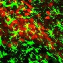 Study: Microglia Tied to Weight Gain in Mice