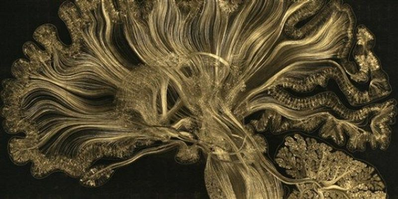 Image of the Day: Gold Matter