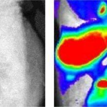 Transgenic Mouse Illuminates Melanoma Metastasis