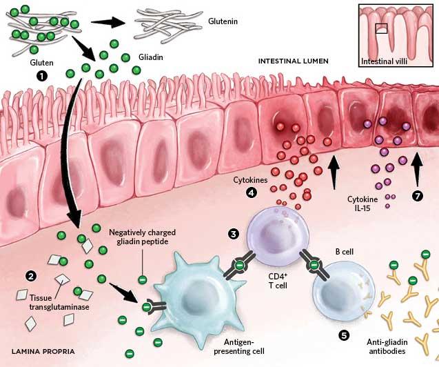 Rise in Celiac Disease Spurs Research | The Scientist Magazine®