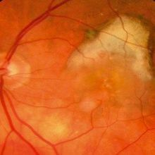 Gene Therapy for Age-Related Macular Degeneration Safe in Humans
