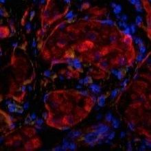 Bioengineered 'Pancreas' Effective in First Patient