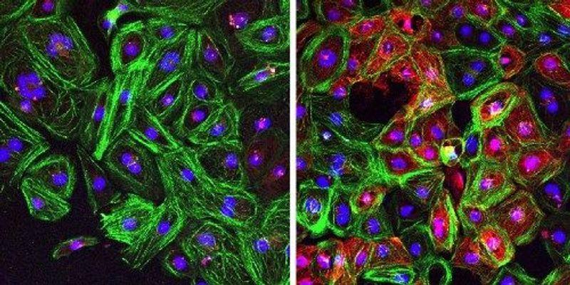 CRISPR Corrects Duchenne-Causing Mutations