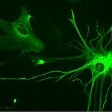 Reprogrammed Glia Improve Symptoms in a Mouse Model of Parkinson's