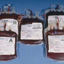 Keeping the Blood Supply Zika-Free