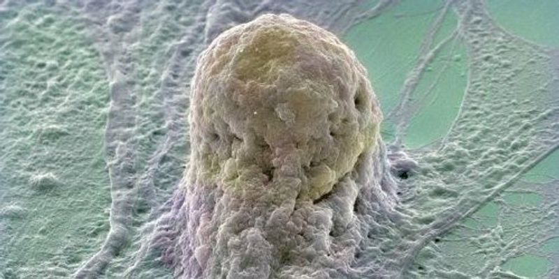 First Clinic-Ready Stem Cell Repository