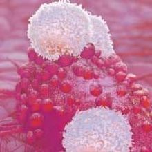 Opinion: More Biomarkers Needed for Cancer Immunotherapy