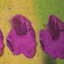 Scientists Successfully Transplant Human Leukemia Cells into Mice