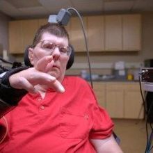 Paralyzed Man Moves Arm with Neuroprosthetic