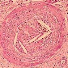 PCSK9 Drug Reduces Heart Disease Risk