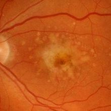 Women Lose Vision After Stem Cell Treatment