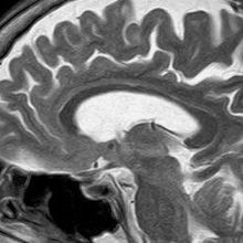 ADHD Linked to Structural Differences in the Brain
