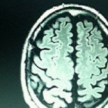 Infant Brain Scans May Predict Autism Diagnosis