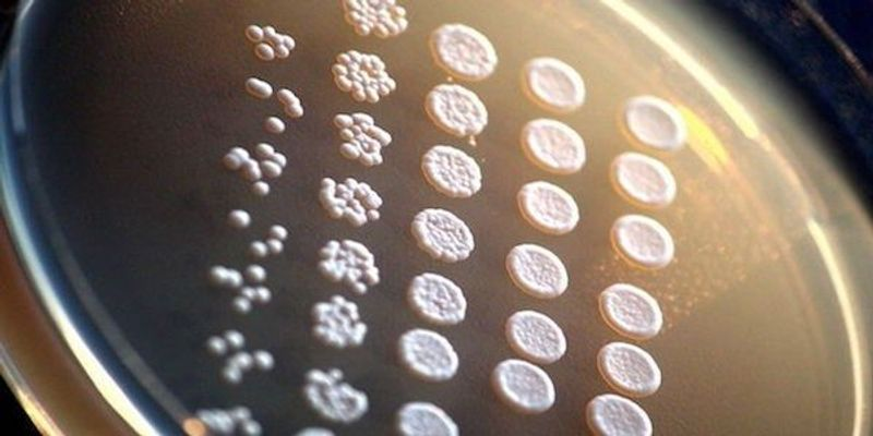 Duplicated Genes May Reduce Resilience in Yeast