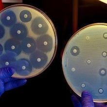 A Drug-Resistant Superbug May Be Stealthily Spreading