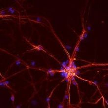 Researchers Refute Proposed Neuron Migration Pathway