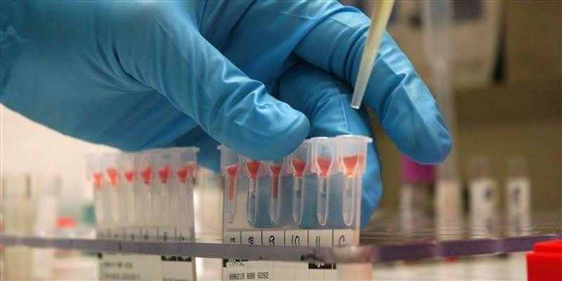 Blood Tests for Prion Disease