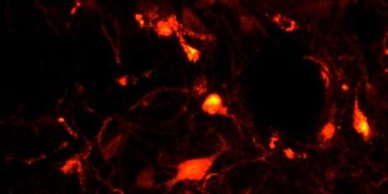 Researchers Pinpoint Neurons Behind Sleep Paralysis in Rats