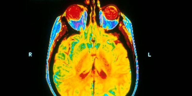 Study: Student Athletes Display Brain Abnormalities After One Football Season