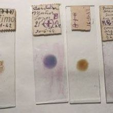 Missing Link in Malaria Evolution Discovered in Historical Specimens